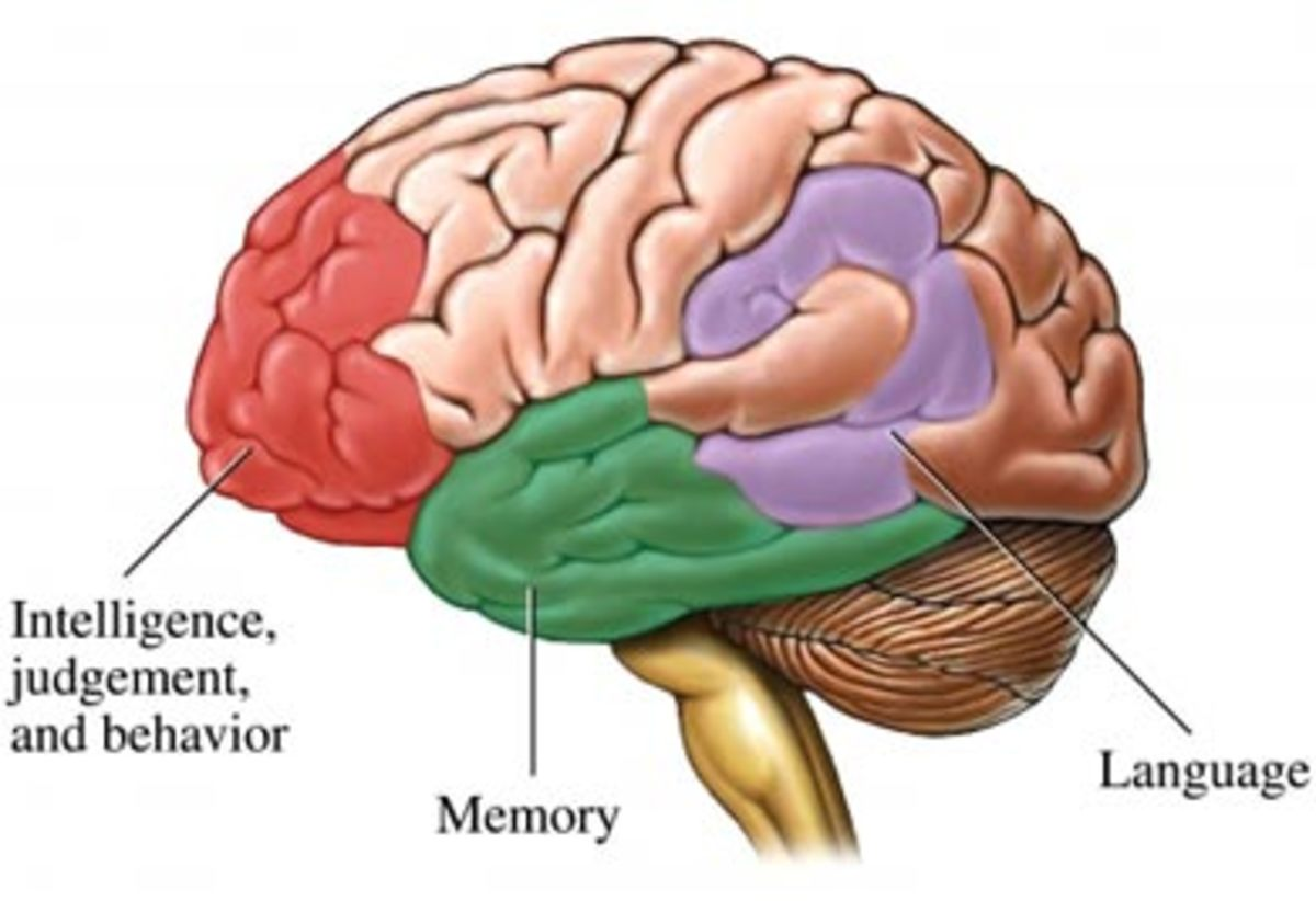 Aspects of brain functions affected by dementia.