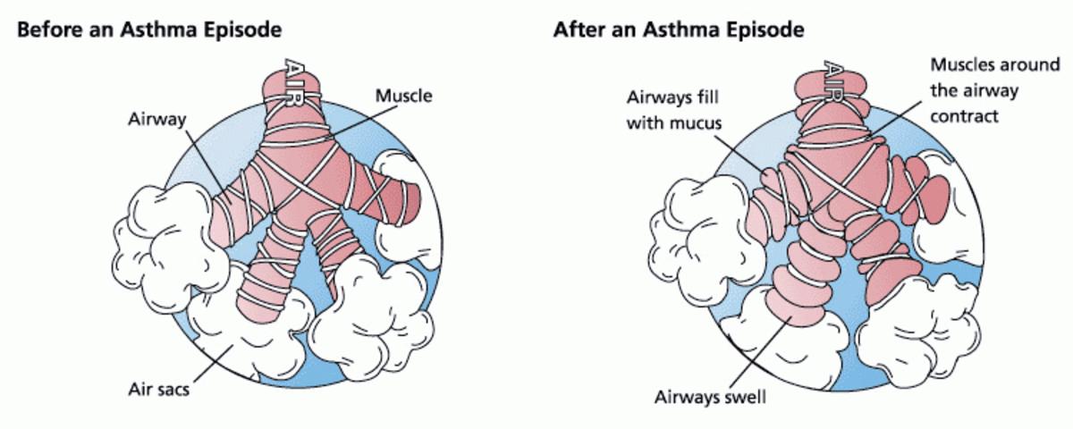 Photo from FDA, public domain