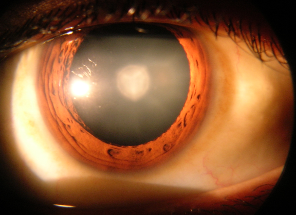 The beginning of a nuclear sclerotic cataract.