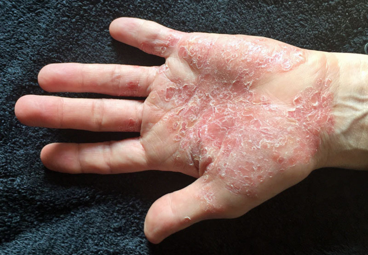 Psoriasis on the palm of the hand.