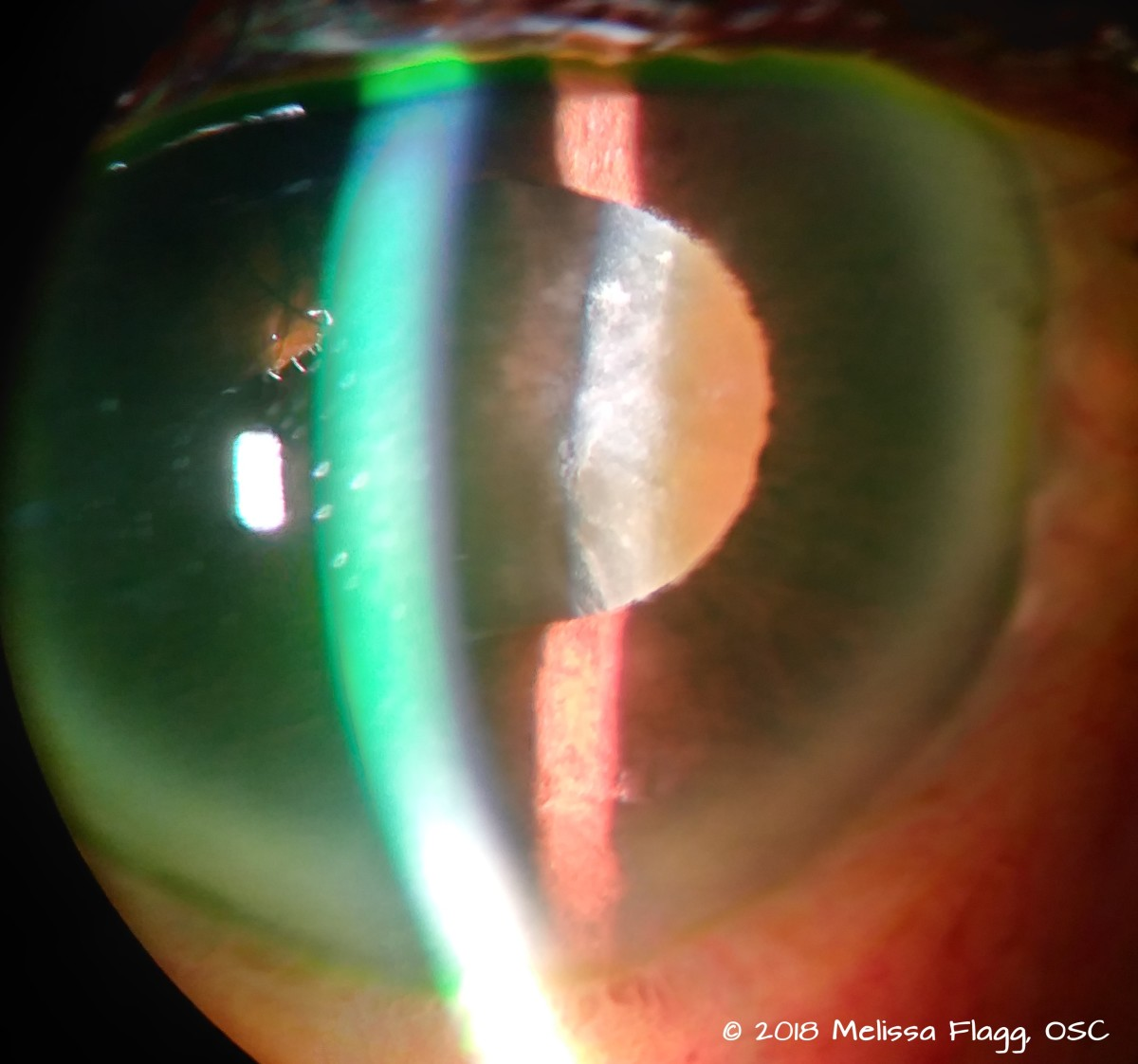 An image of a very mature cataract in an elderly patient. In the center of the pupil you can see the brownish glow we call brunescence, a good sign that this cataract needs to be removed.