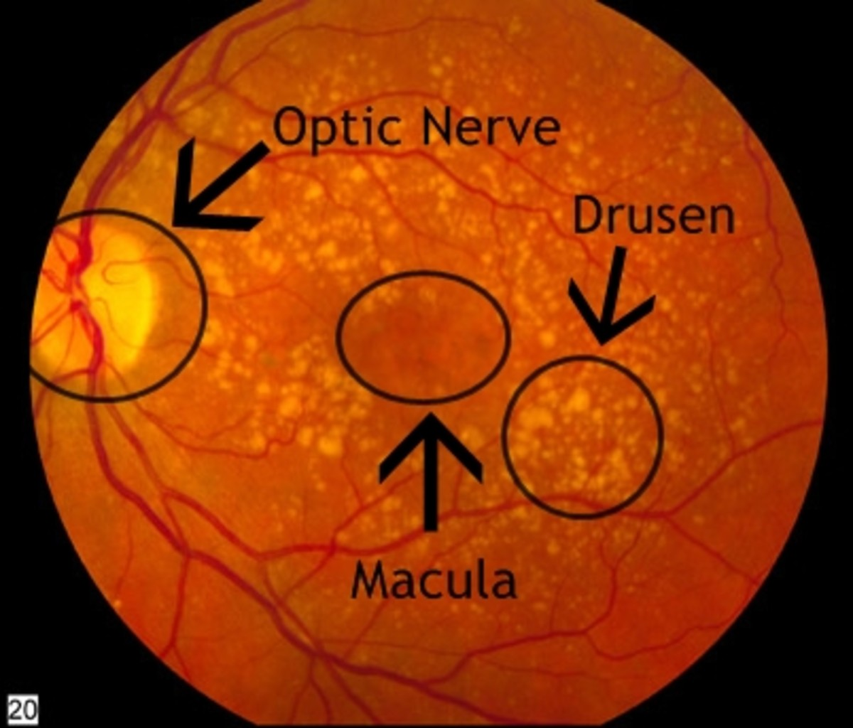 This is what dry AMD looks like.