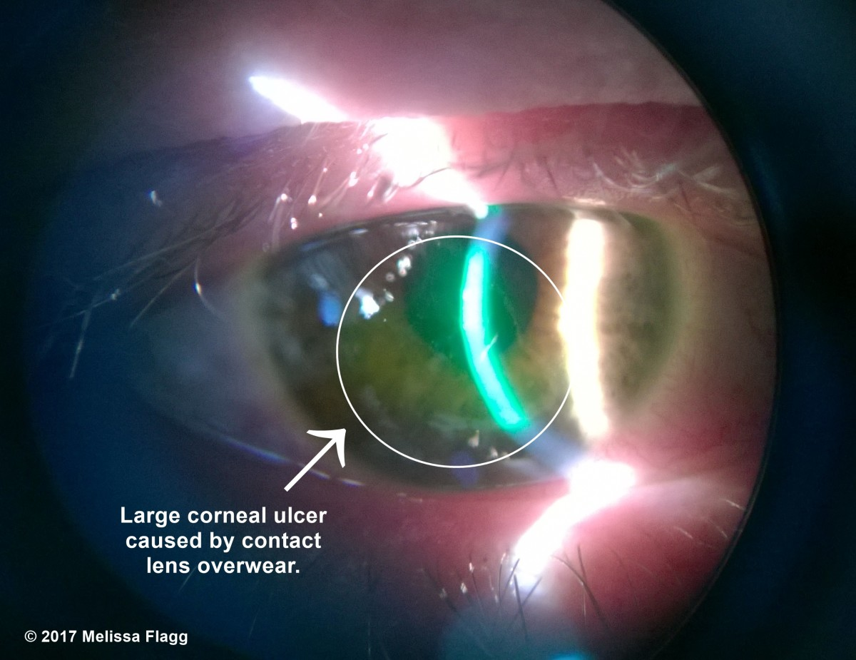 The green colored area in the circle on this patient's cornea is a corneal ulcer caused by contact lens over wear.