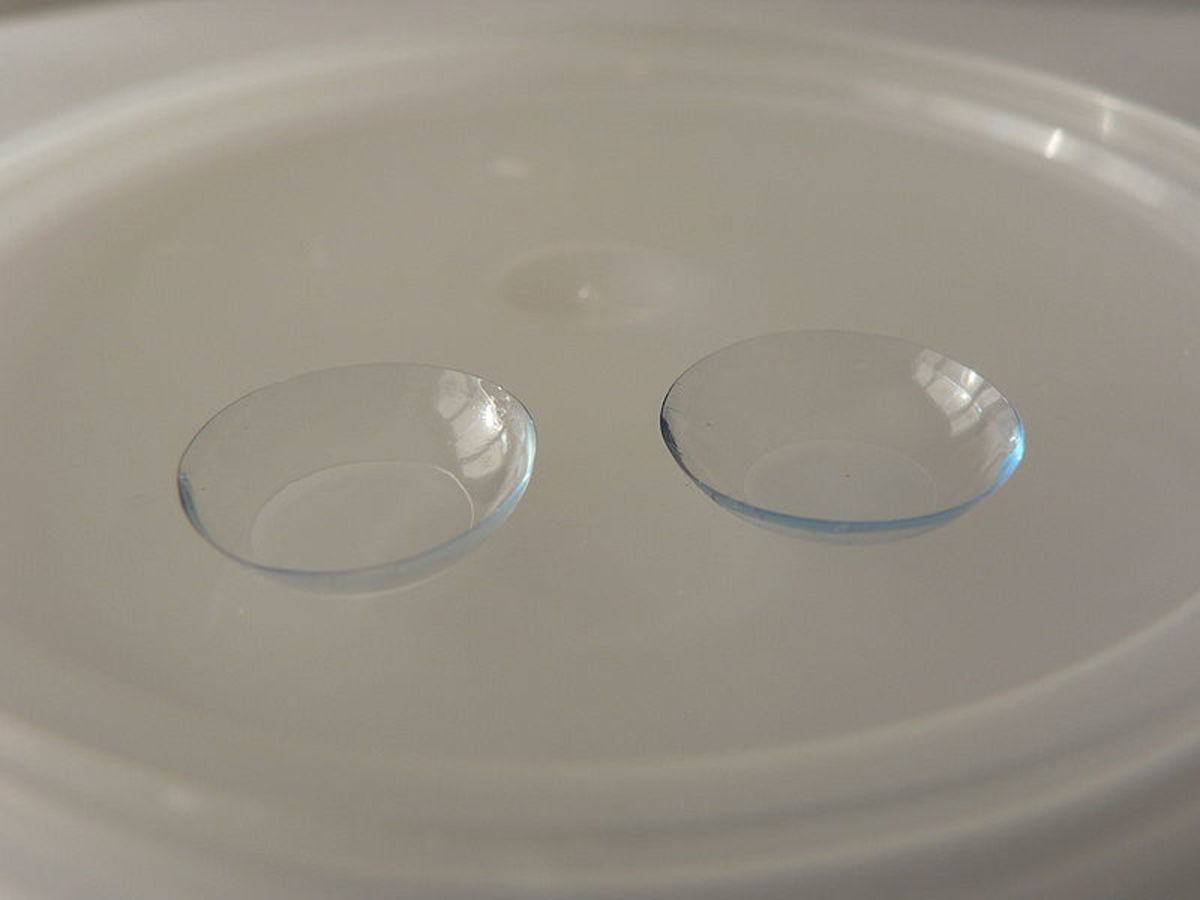 Prolonged contact lens wear can cause ketatitis.