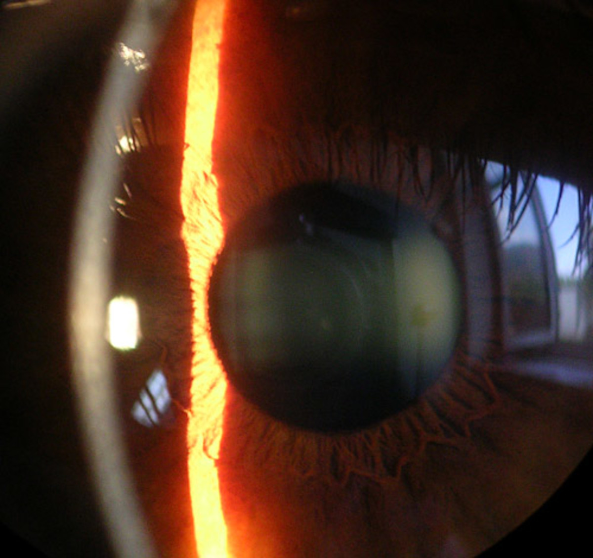 If you look closely, you can see the reflection on the cornea of the window behind the person taking the photo. This is a clear, healthy cornea.