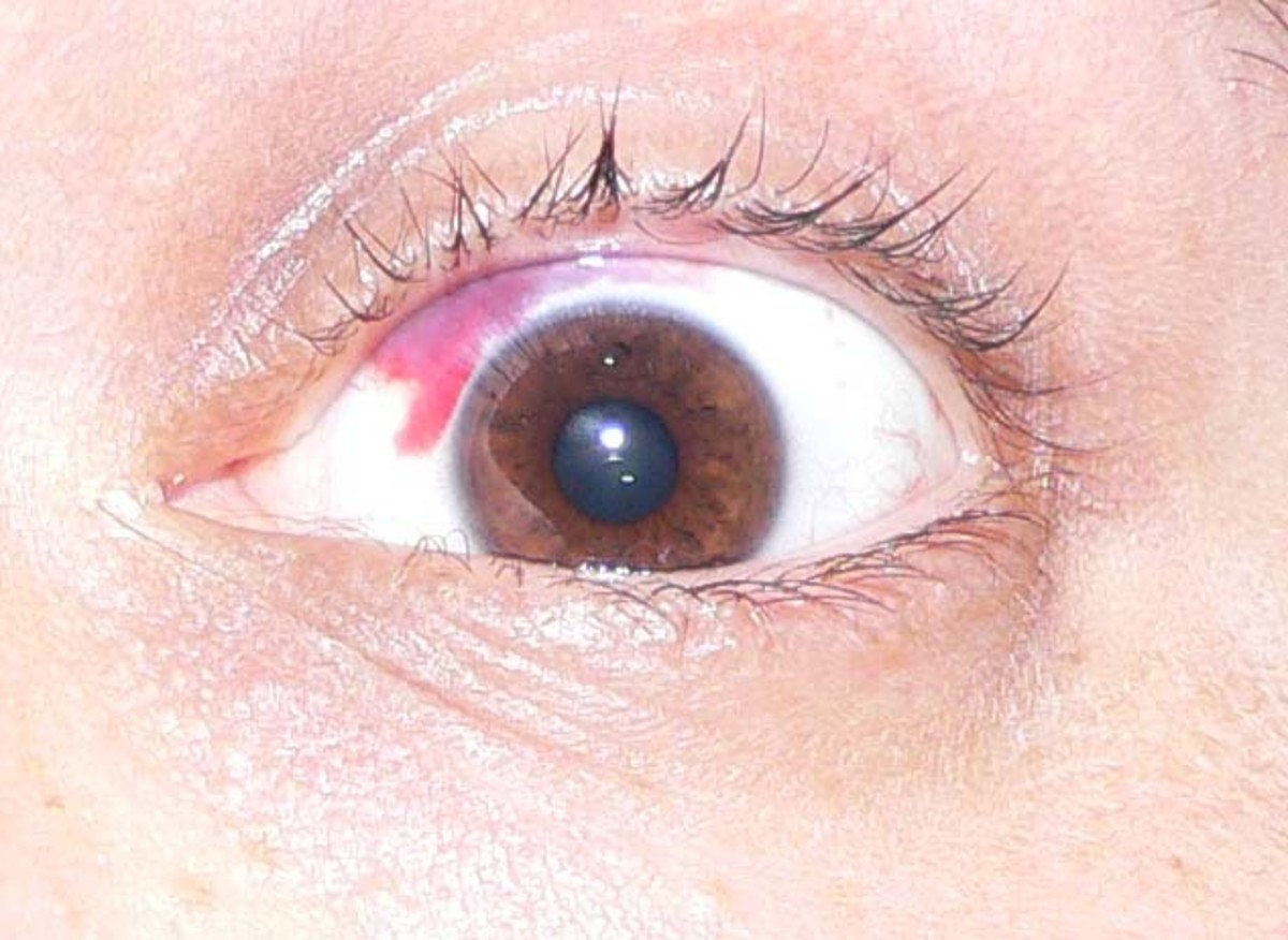 A subconjunctival hemorrhage is often an unavoidable consequence of the LASIK procedure.