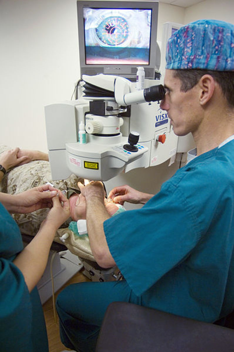 A doctor performing LASIK.