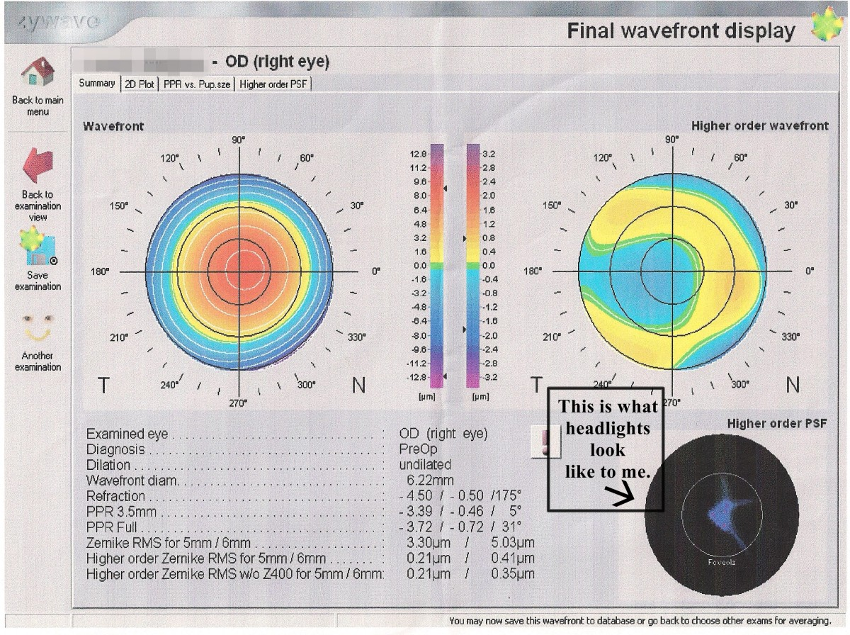 This is an image of my own Custom Wavefront LASIK evaluation. In the lower right corner you can see an image that shows the distortions caused by higher order aberrations. Essentially, when I look at headlights, this image is what I see.