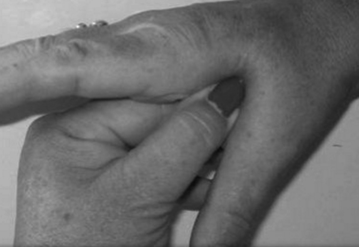 Pressure Points Can Help Calm You