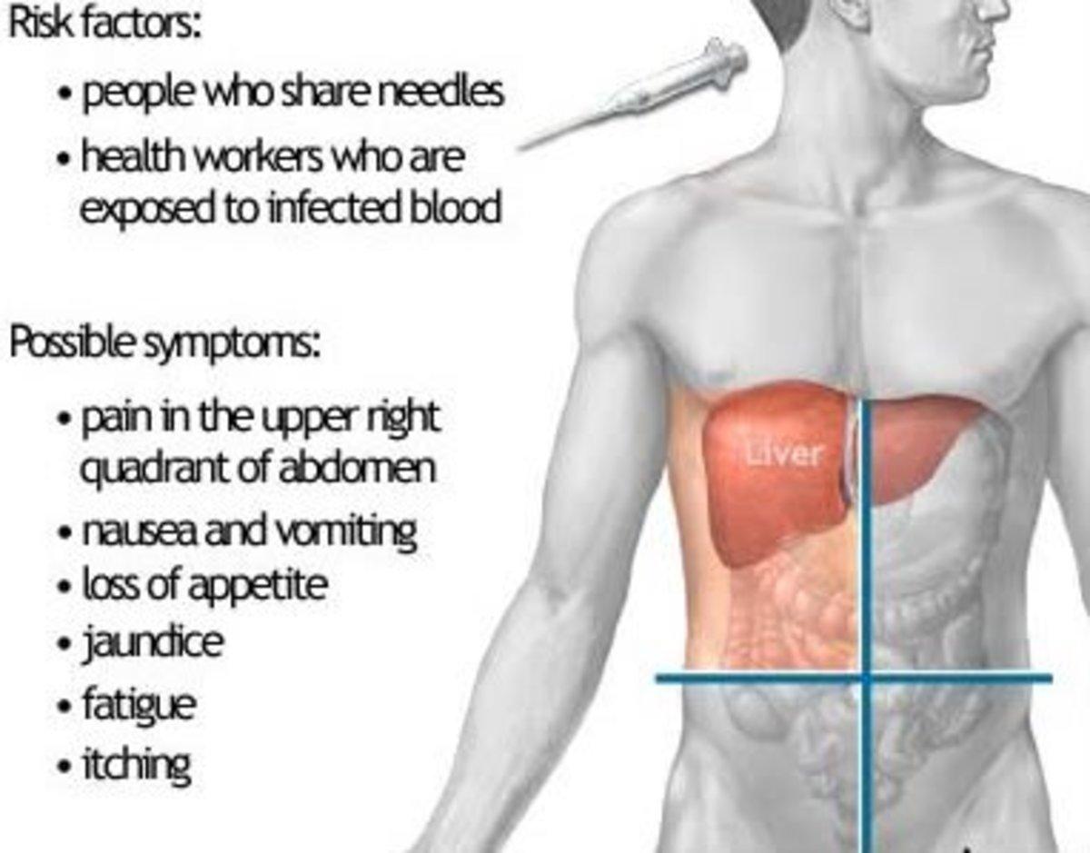 Risk Factors and Symptoms of Hepatitis