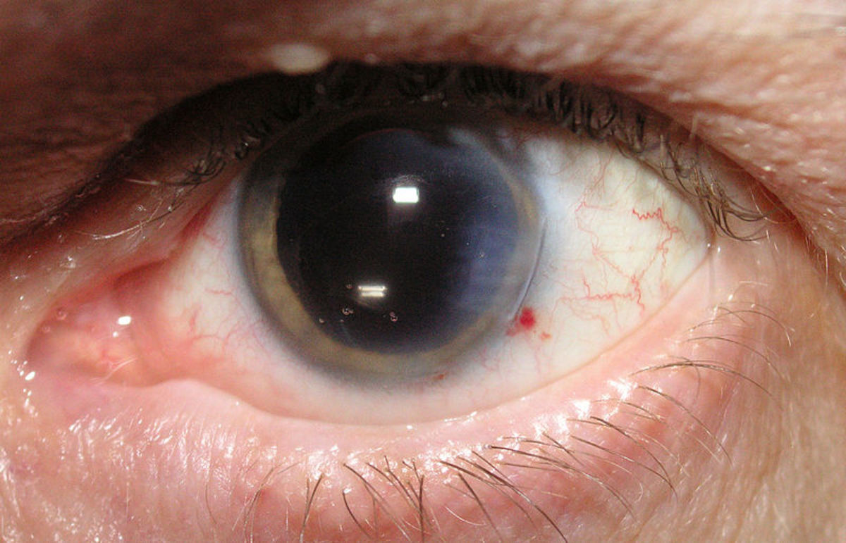 An eye shortly after cataract surgery.