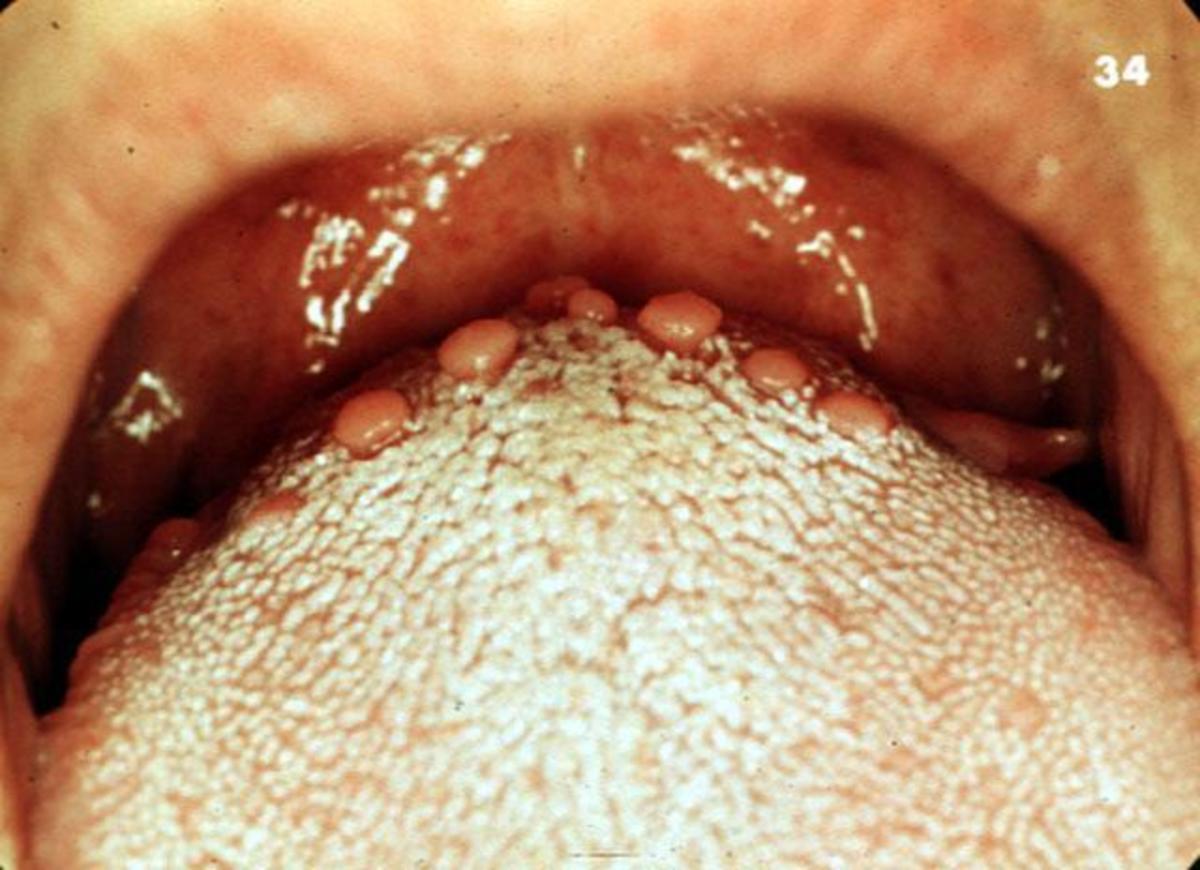 Circumvallate papillae (taste buds) - normal finding