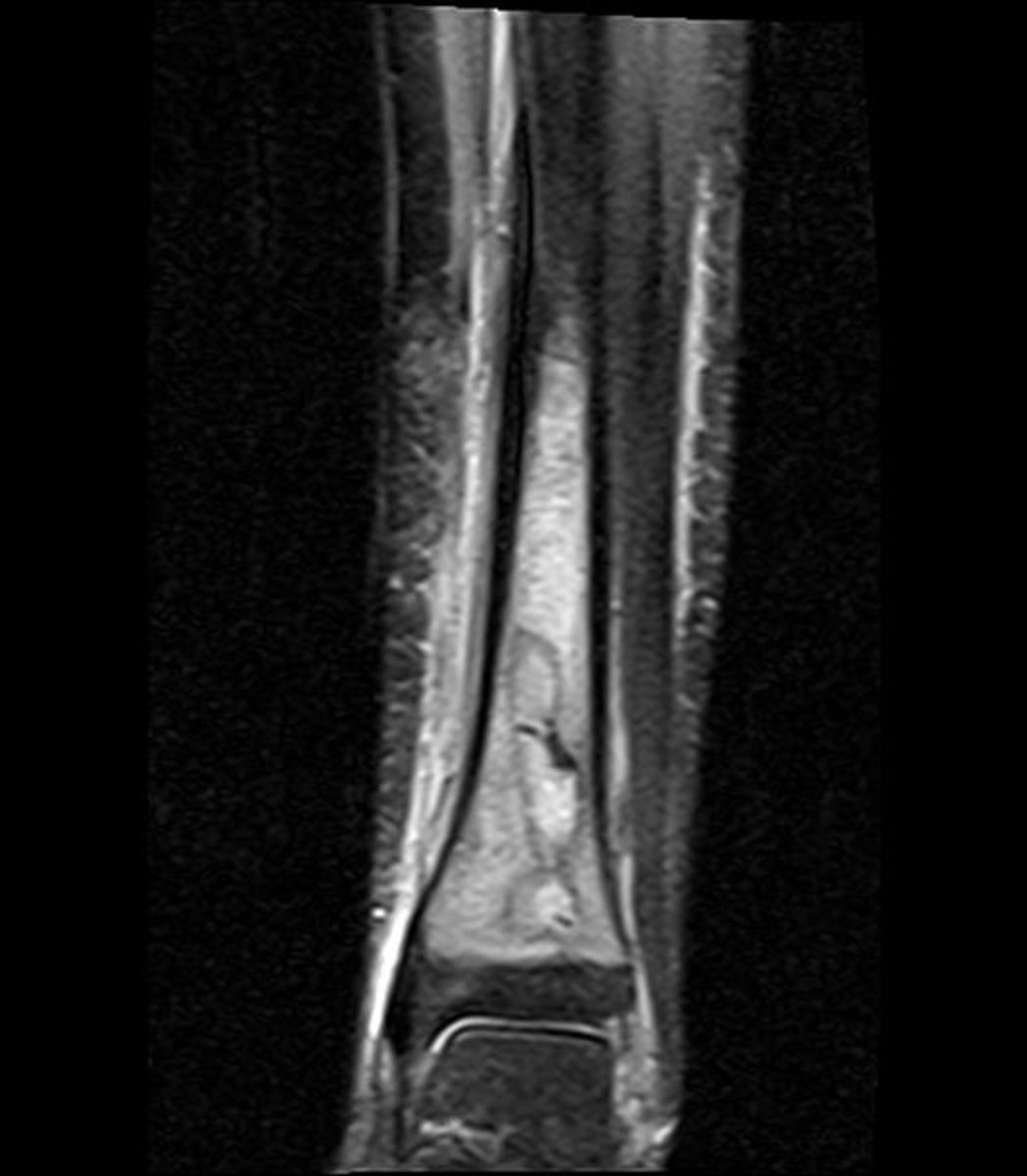 X-RAY showing an abscess on ankle and osteomyelitis of the bone.