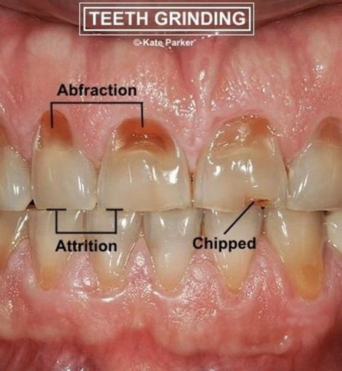 stop-grinding-your-teeth