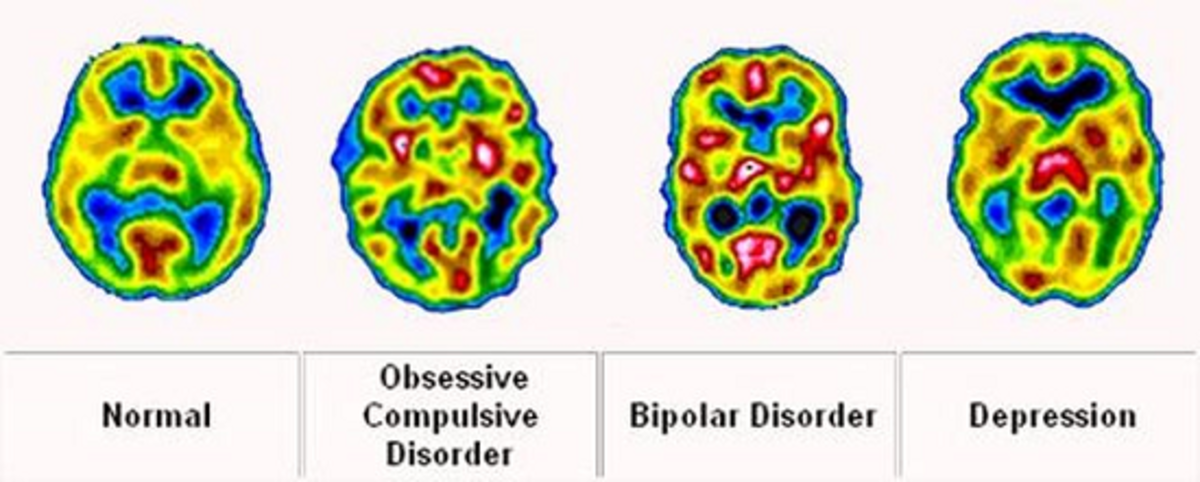 MRI scan shows differences in brain function across various mental disorders.