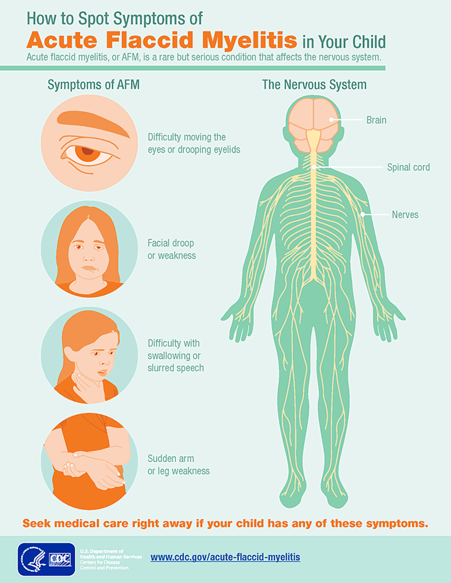 These are the most common symptoms of AFM.