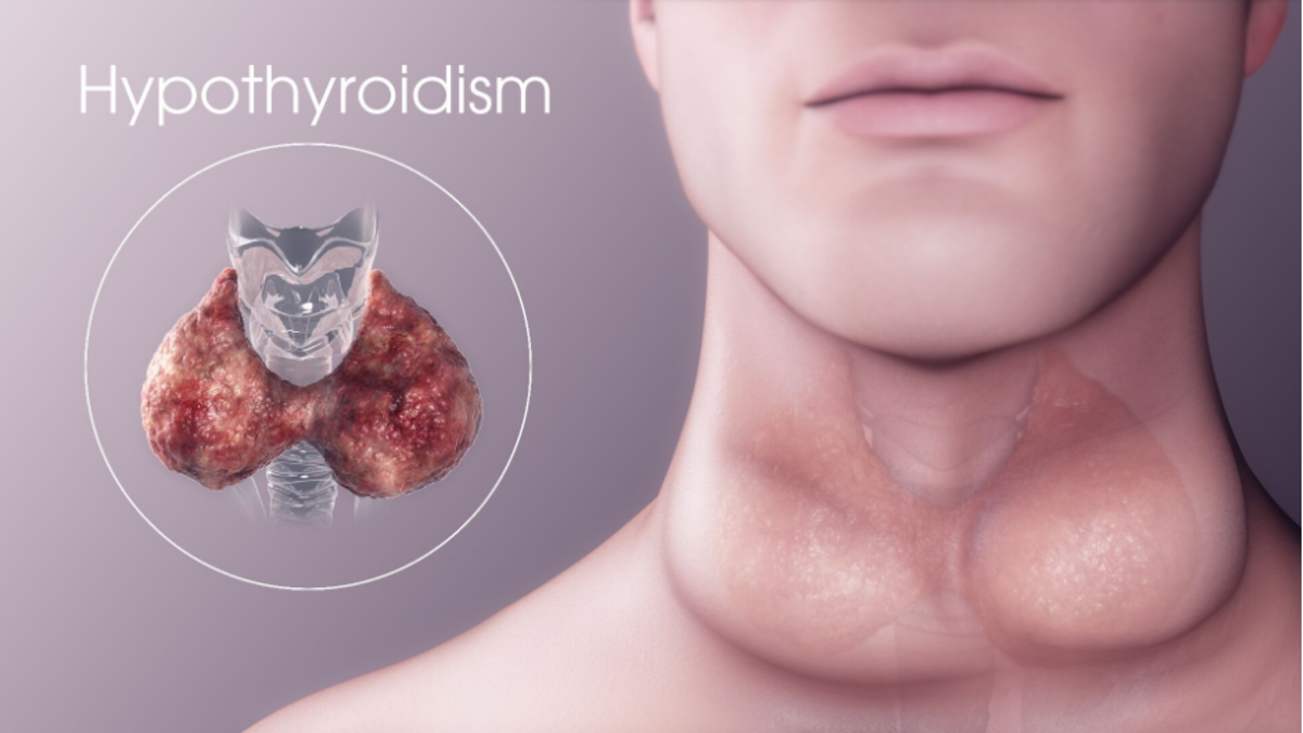 What Is Hypothyroidism, and Is it Treatable?
