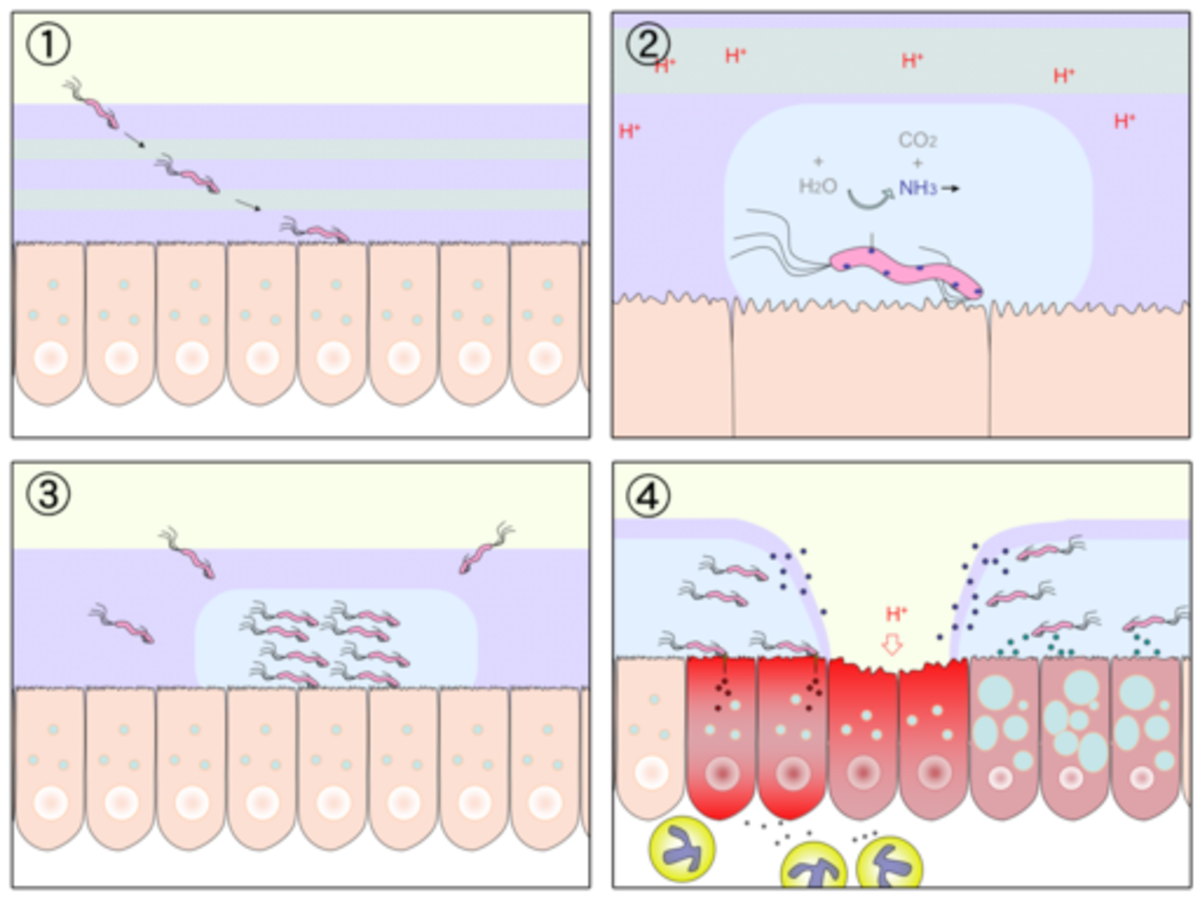 H. pylori infection mechanism