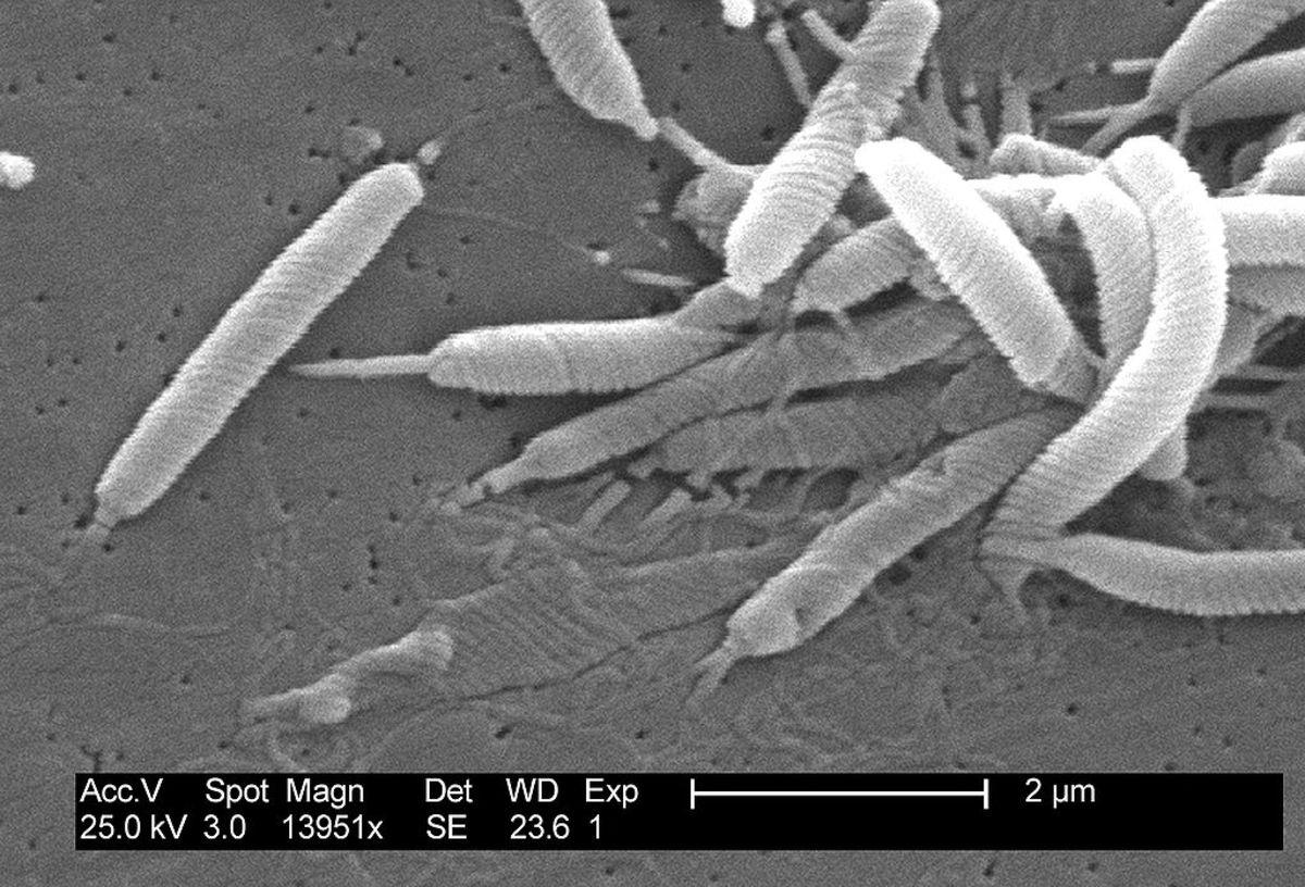 EM of Helicobacter pylori
