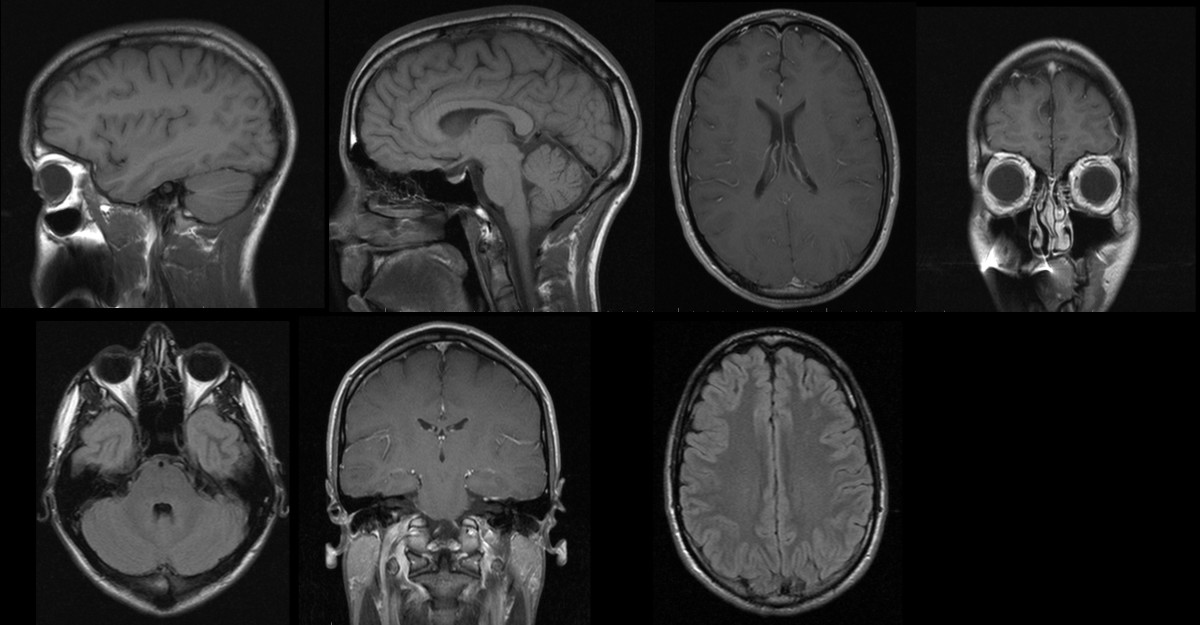 Brief Review of a New York Times Article on Chronic Traumatic Encephalopathy