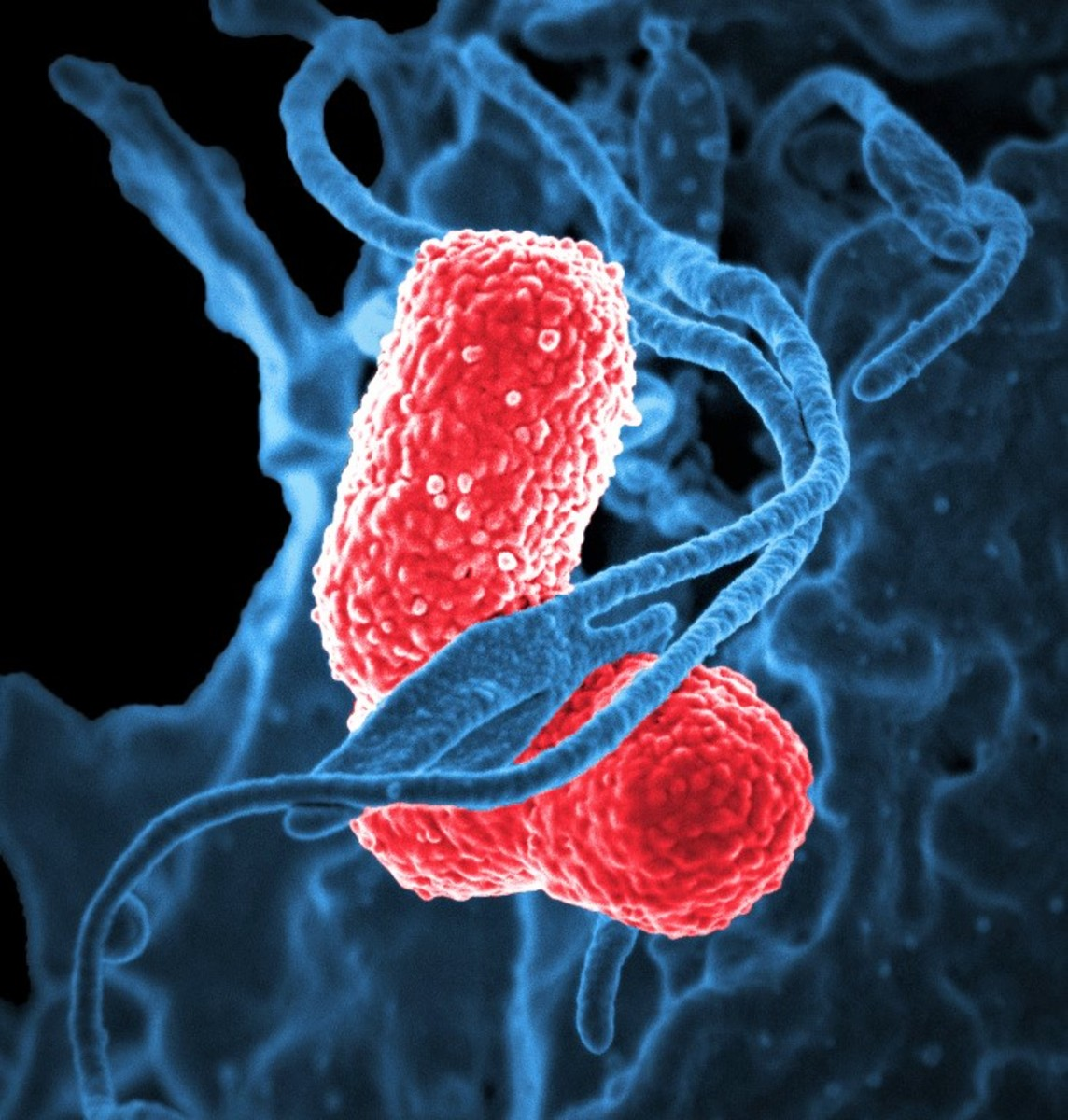 Klebsiella pneumoniae Facts, Possible Effects, and Research