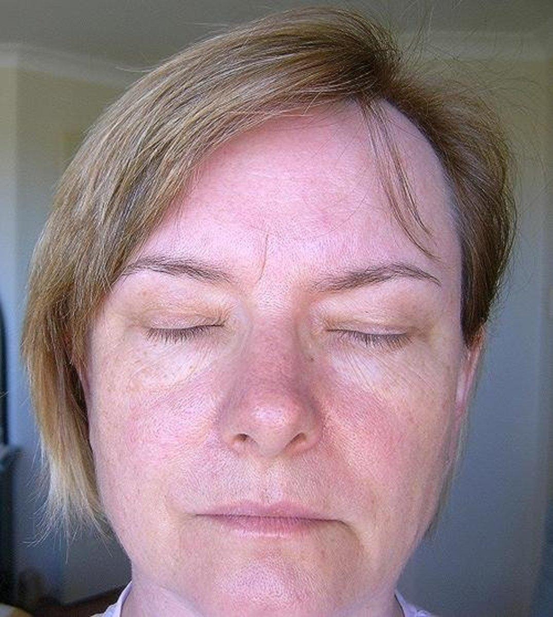 Skin condition before using Baiden Mitten