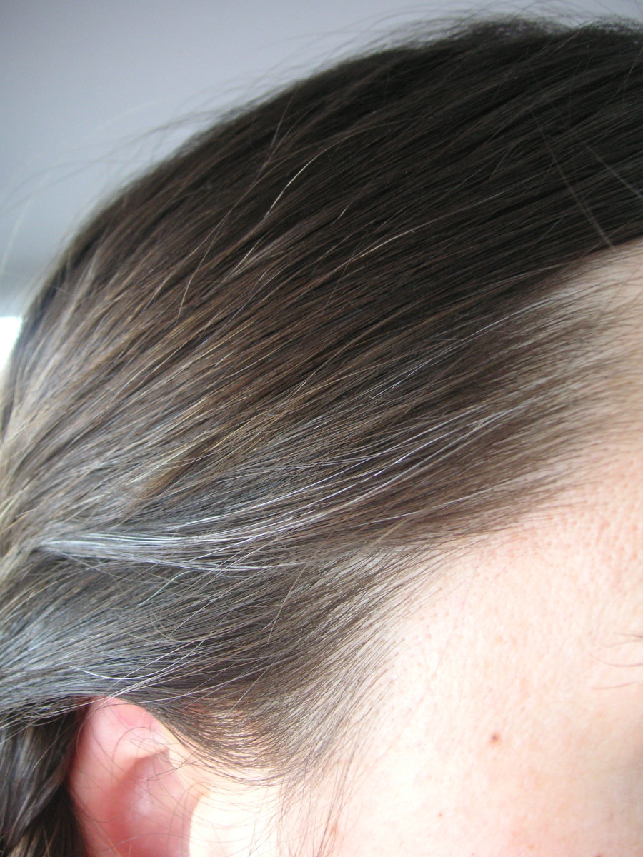 Signs of loss of hair pigment in gray hair often appear around the hairline first.
