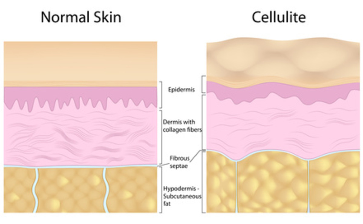 Anatomy of cellulite