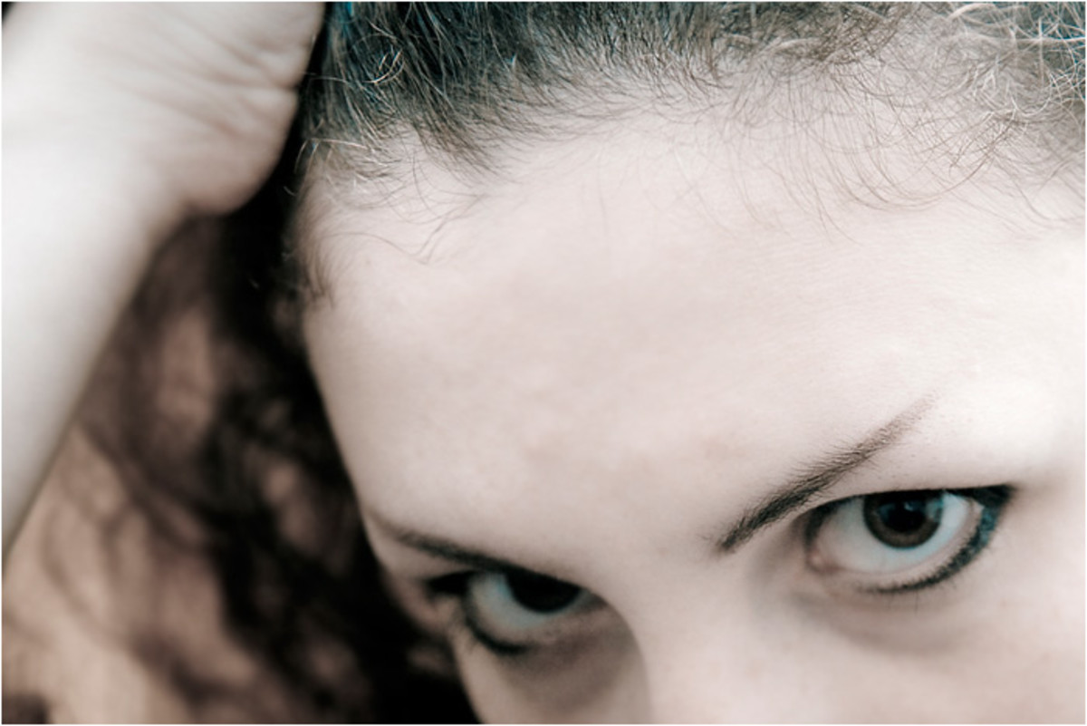 With the Mirena IUD, your hairline may recede or you may notice diffuse shedding all over your head.