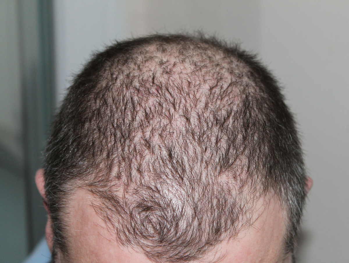 Others are less likely to notice you are balding if you start using hair loss concealer the moment your scalp becomes visible through your hair.