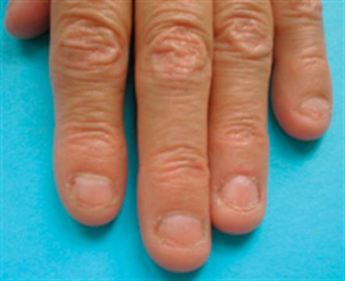 Consequences And Health Risks Of Nail Biting