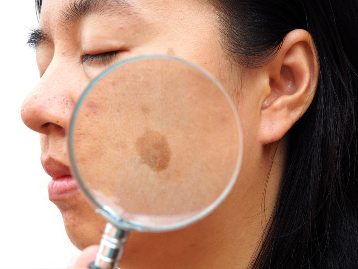 Melasma on Face of Young Woman