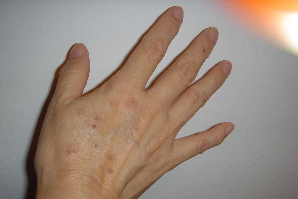 alexandrite-laser-for-treatment-of-sun-damaged-skin