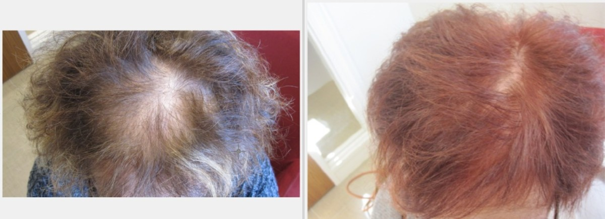 Dyeing your hair can help you hide hair loss.