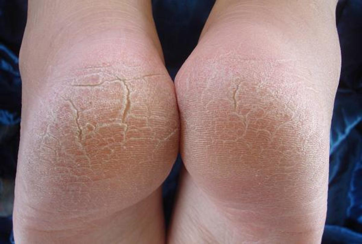 Dry, cracked feet cause discomfort and can make you more prone to infections.