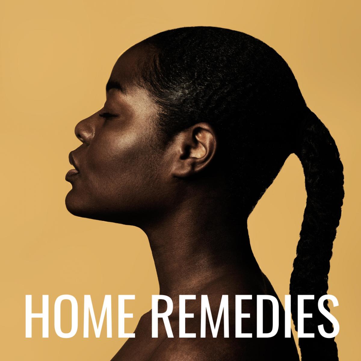 Home Remedies for Melasma