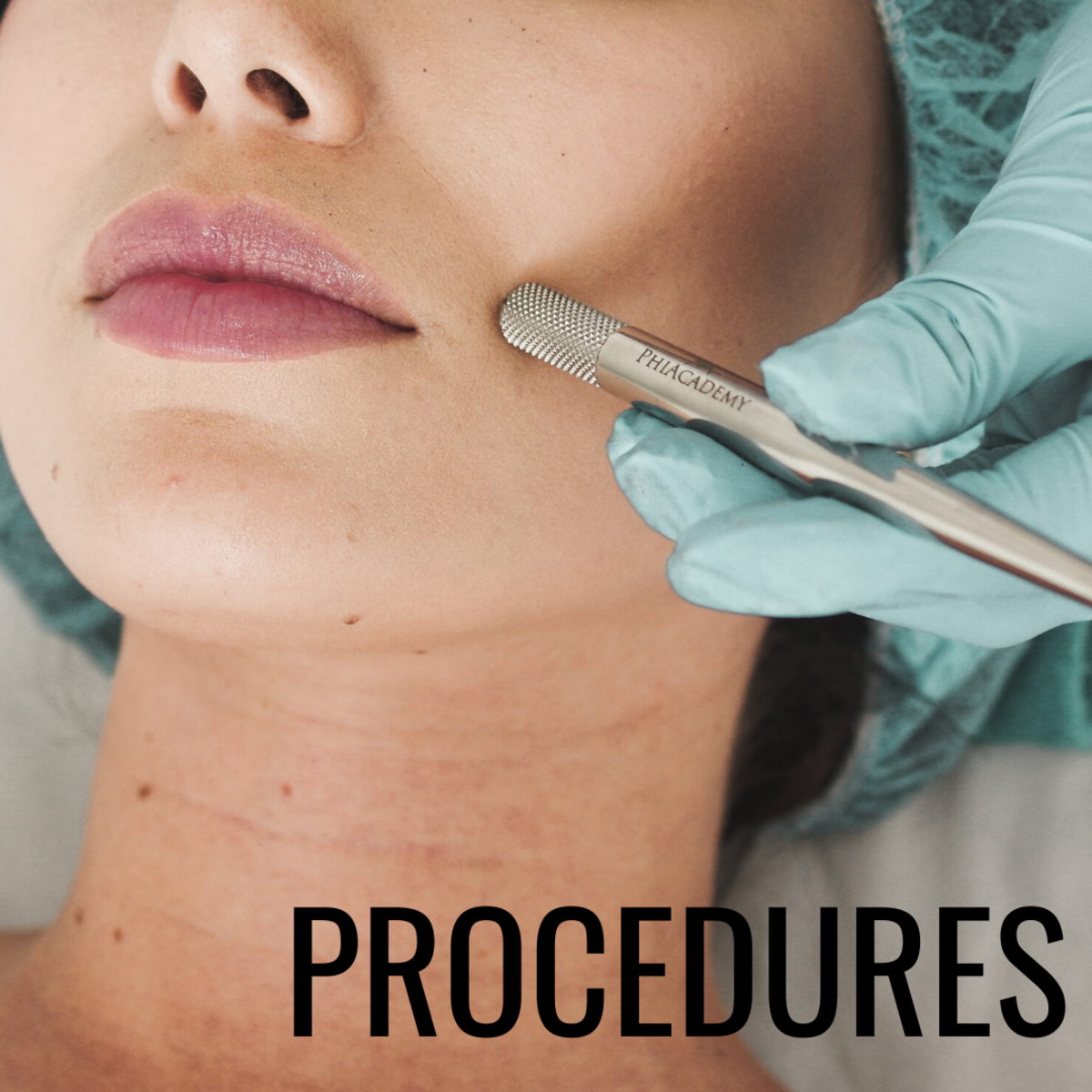 If natural remedies don't help, consider in-house procedures.