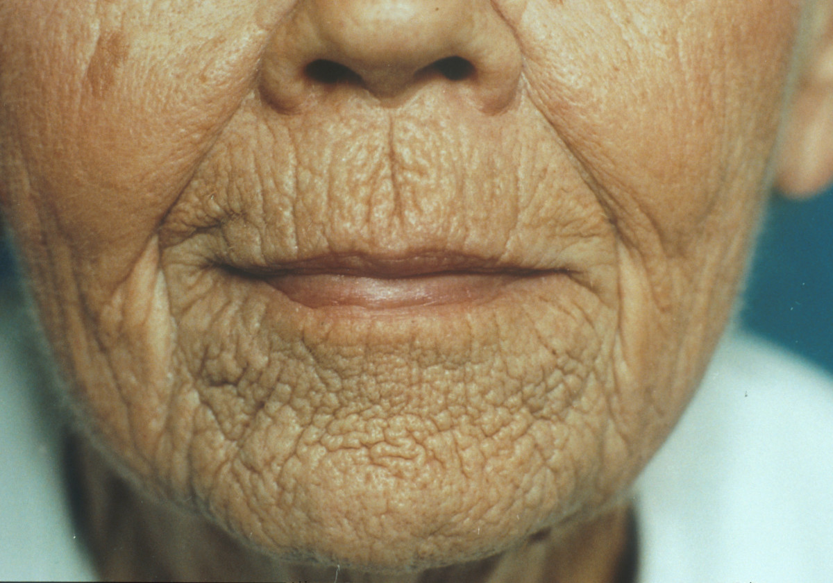 Can microdermabrasion help treat static wrinkles? You beat!
