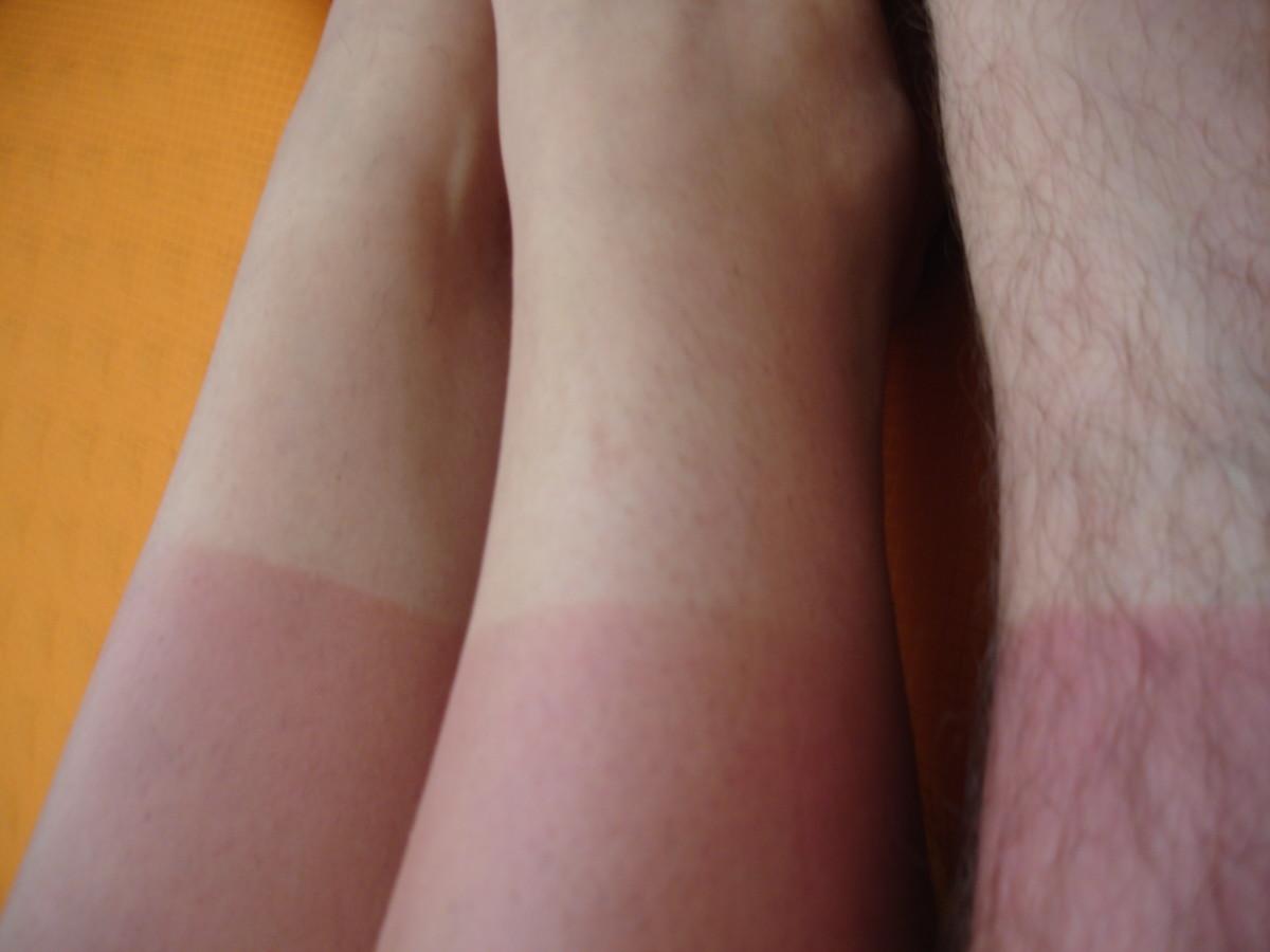 Classic indications of sun damage.