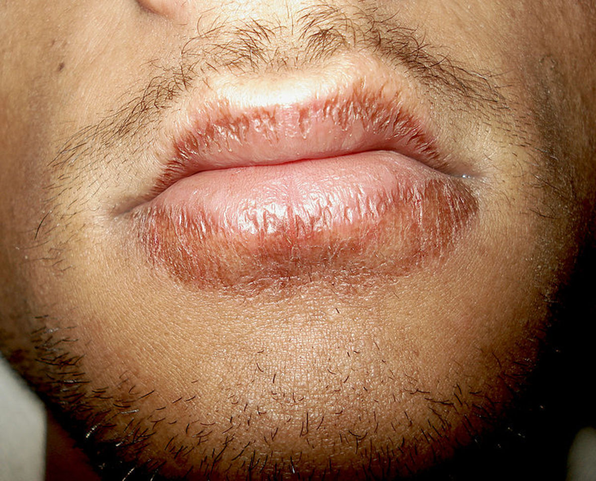 Chapped lips can be painful and unpleasant.