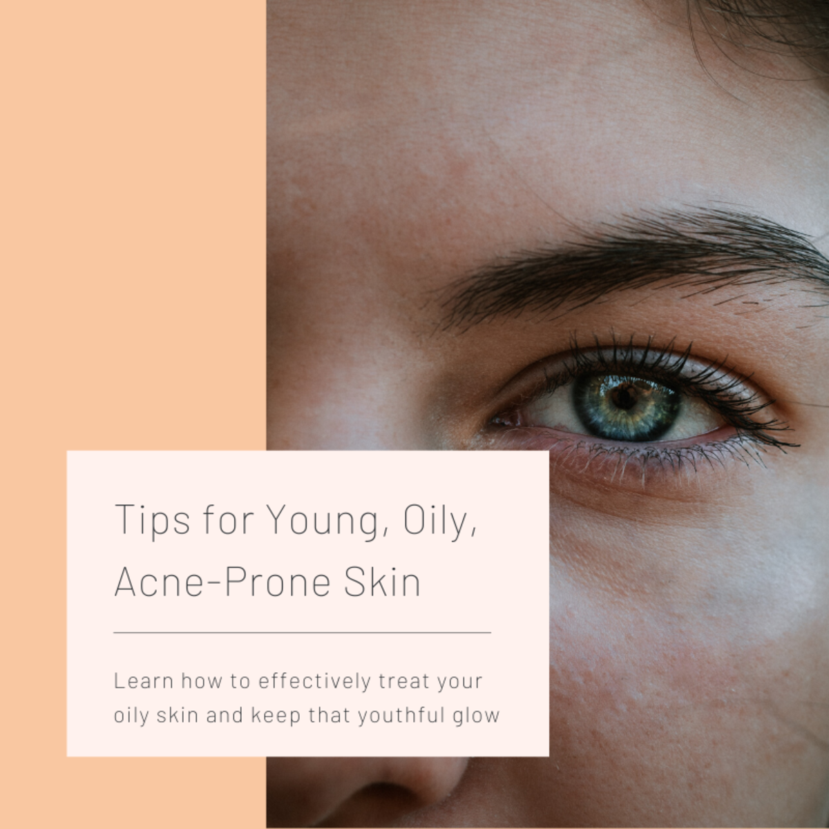 How to Treat Young, Oily, Acne-Prone Skin