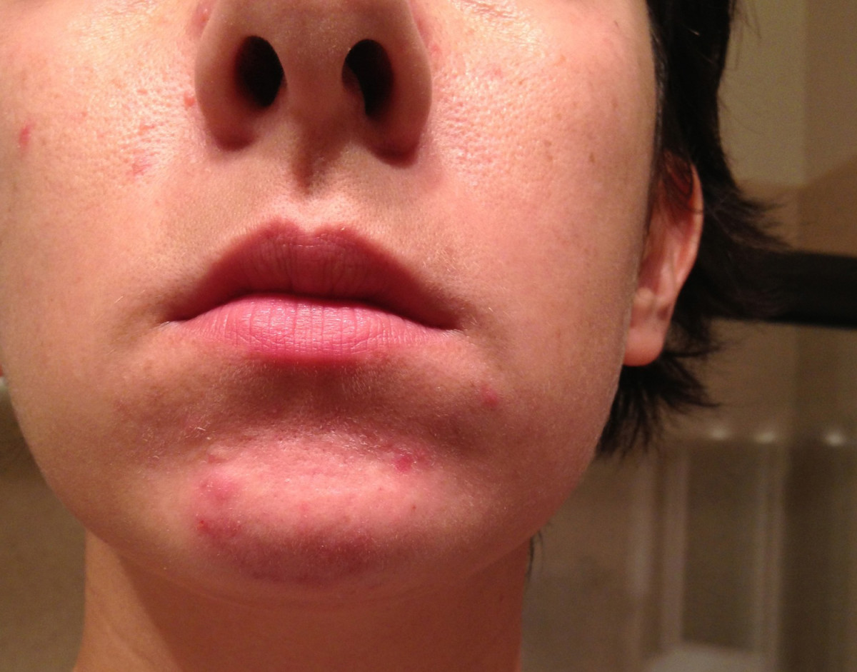 Acne on the chin is often caused by hormonal fluctuations.