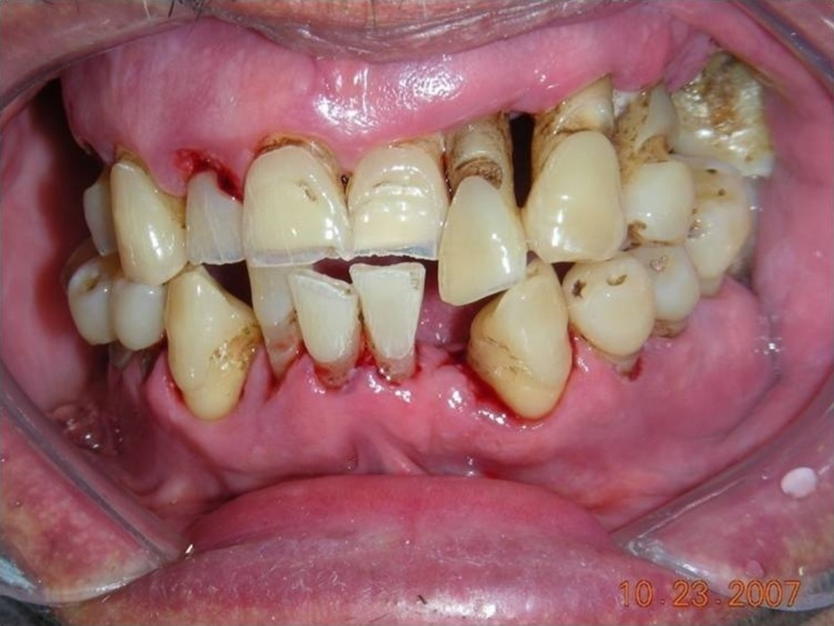 Patient with periodontitis