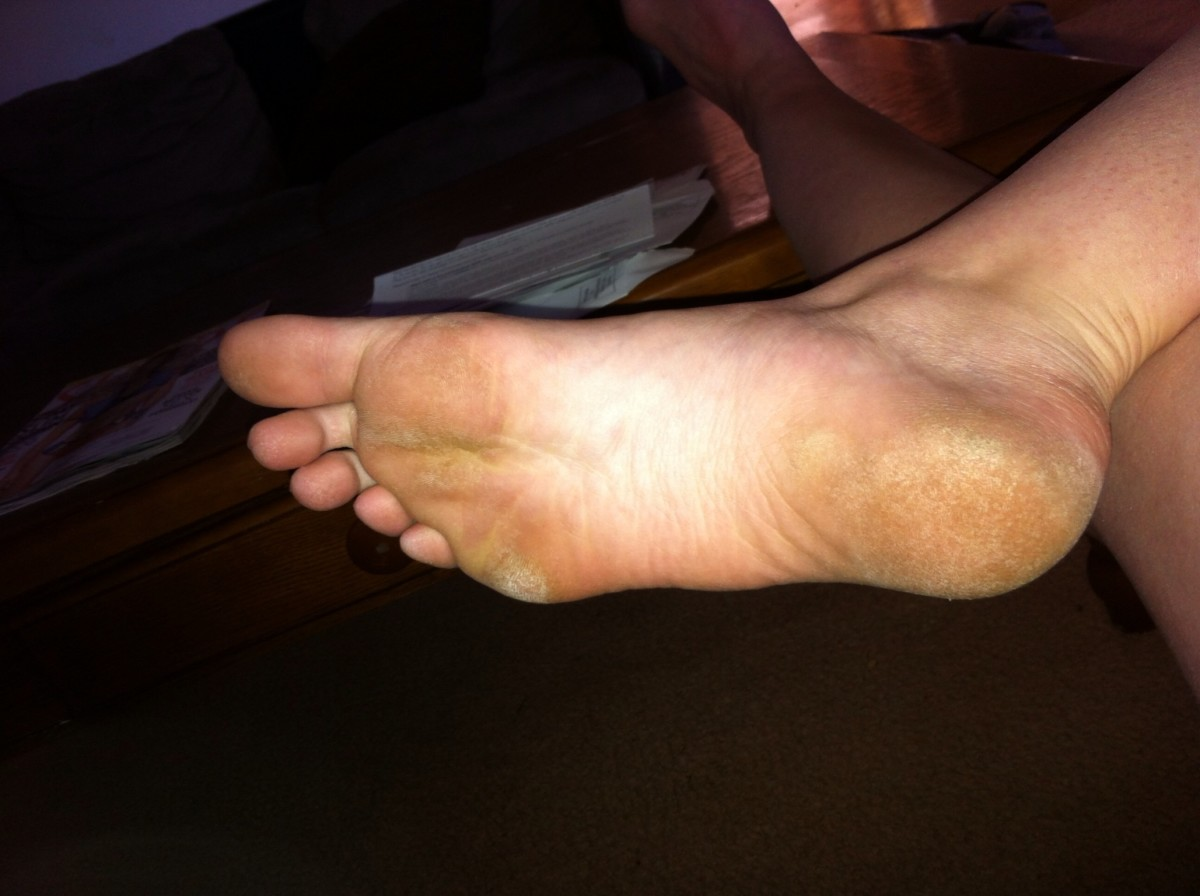 My feet used to be stained and dirty looking from all the rough calluses.