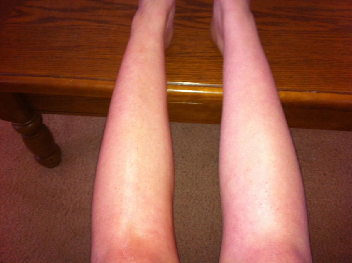 After only one quick application of the tea tanning lotion to my left leg.