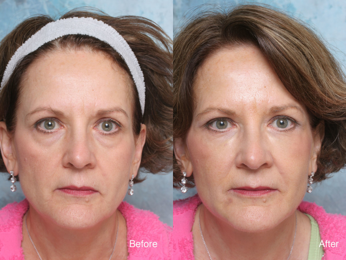 Eye bags treated with wrinkle fillers and eye lift.