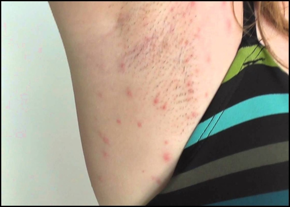 Avoid problems with razor bumps and irritation when shaving your underarms by following the guidelines in the video below.