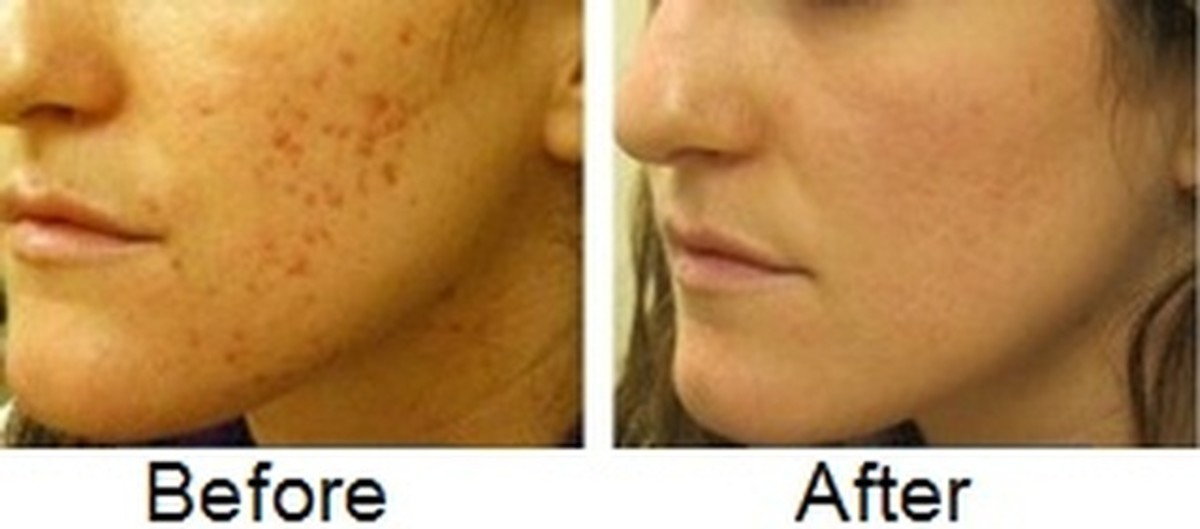 Before and after treating acne scars with lemon extract. Note that pigmentation is lighter in the second picture and the complexion is improved.