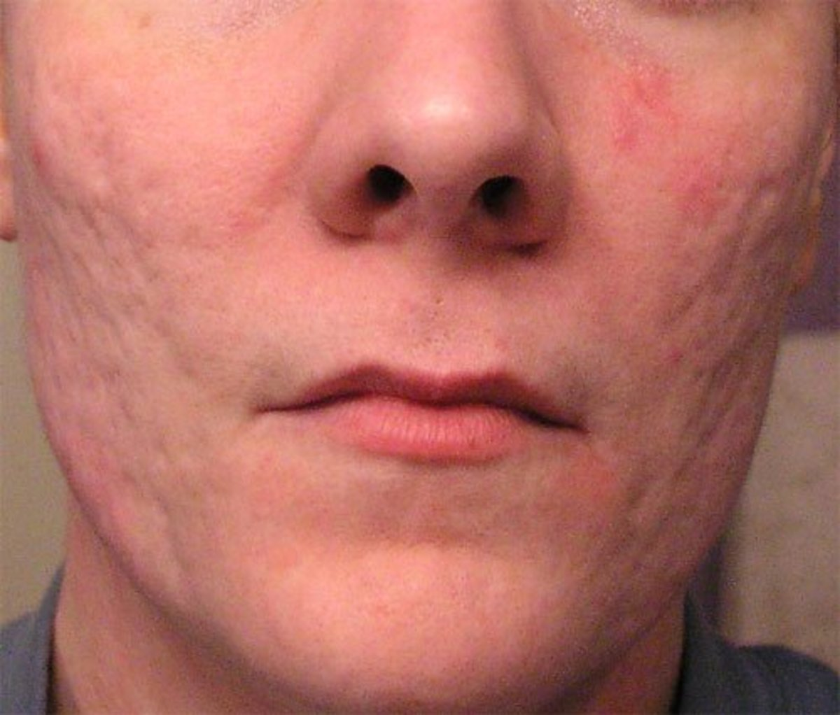 A man over the age of 40 with deep acne scars.