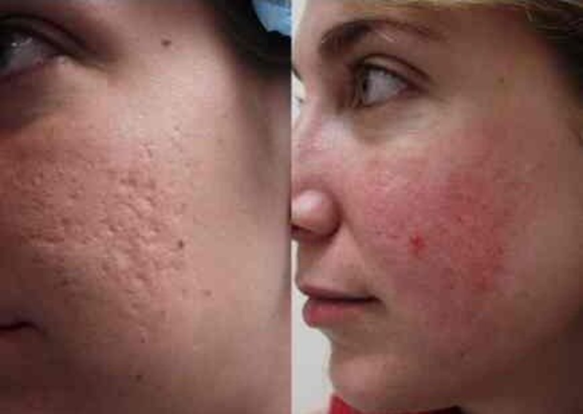 woman in her mid-20s with acne scars on her cheeks.